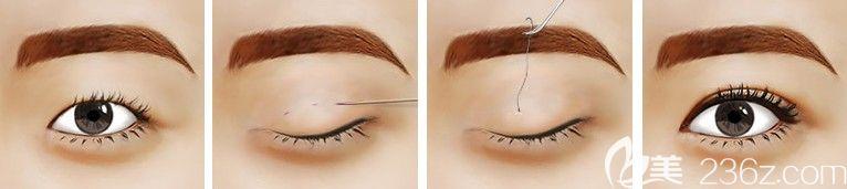 埋线法双眼皮手术原理分享