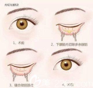 内切祛眼袋手术流程