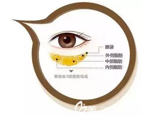 眼袋形成原因