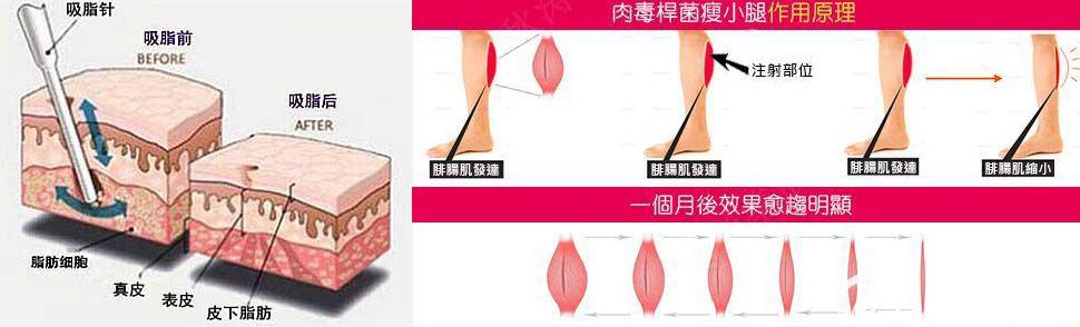 吸脂和瘦腿针原理