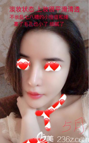 韩国蕾切尔皮肤管理怎么样