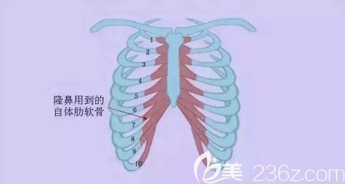 肋软骨取出位置介绍