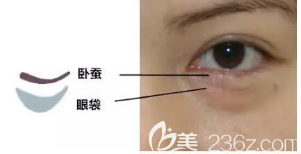 分享卧蚕和眼袋的区别
