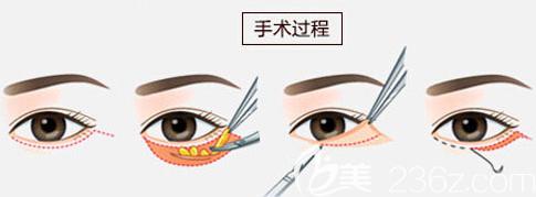 外切法去眼袋手术原理