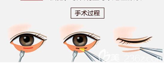 内切法去眼袋手术原理
