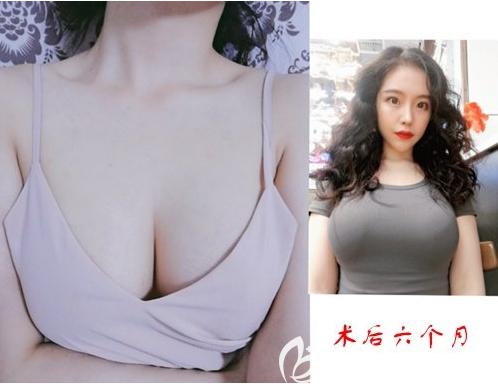 感谢昨天勇敢的我选择韩国普罗菲耳郑在皓做水滴假体隆胸