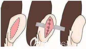 耳朵畸形的手术示意图
