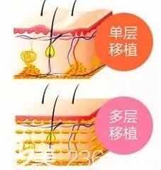 注射自体脂肪分层移植