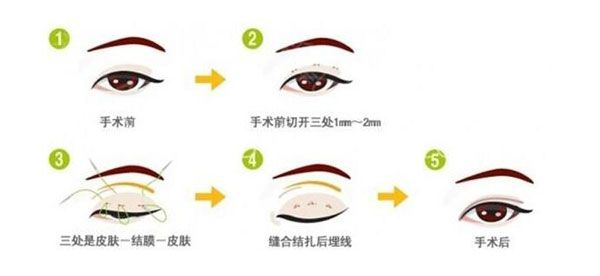 韩式双眼皮自然吗