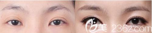 韩式三点式双眼皮术后效果图