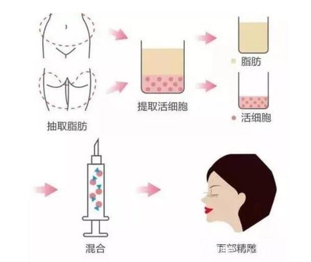 自体脂肪填充脸部原理介绍