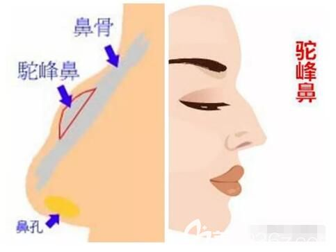 什么是驼峰鼻