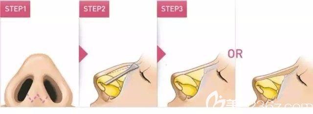 假体植入改善驼峰鼻