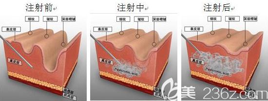 注射玻尿酸的示意图