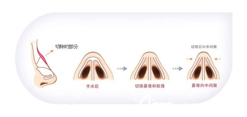 中重度驼峰鼻整形矫正手术简易图