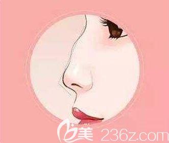 驼峰鼻的形成原因