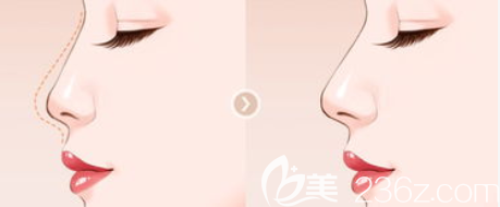 综合隆鼻效果示意图