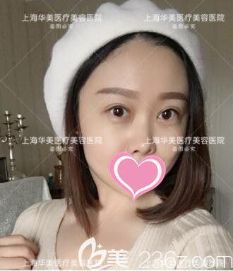 好闺蜜说我在上海华美找杨亚益做的切开双眼皮+开内眼角+上睑提肌矫正花钱值了