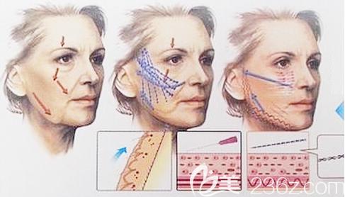 面部线雕埋线提升手术示意图
