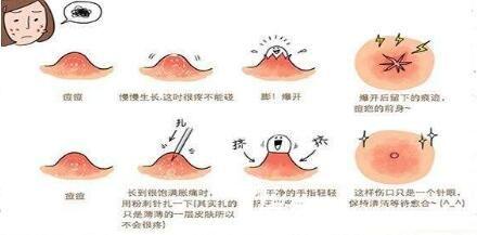 面部痤疮形成的原因