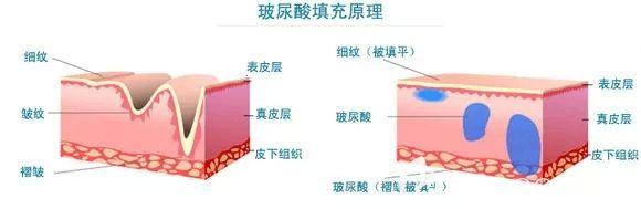 玻尿酸抗衰原理介绍
