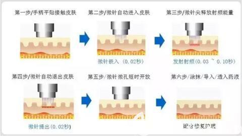 黄金射频微针的作用原理及优势