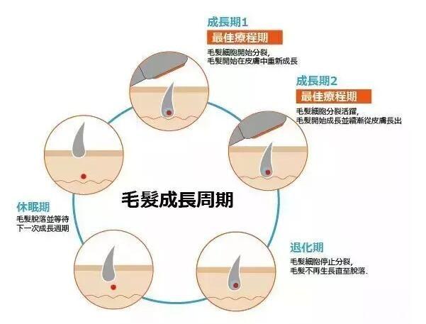激光脱腋毛支队生长期的毛发有效果