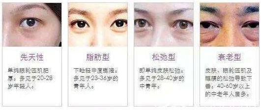 各种类型的眼袋示意图