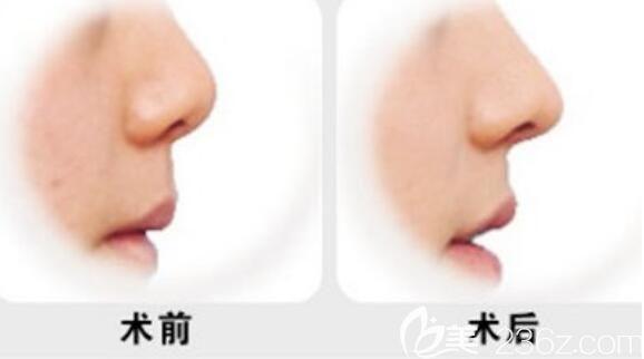 隆鼻手术效果对比图