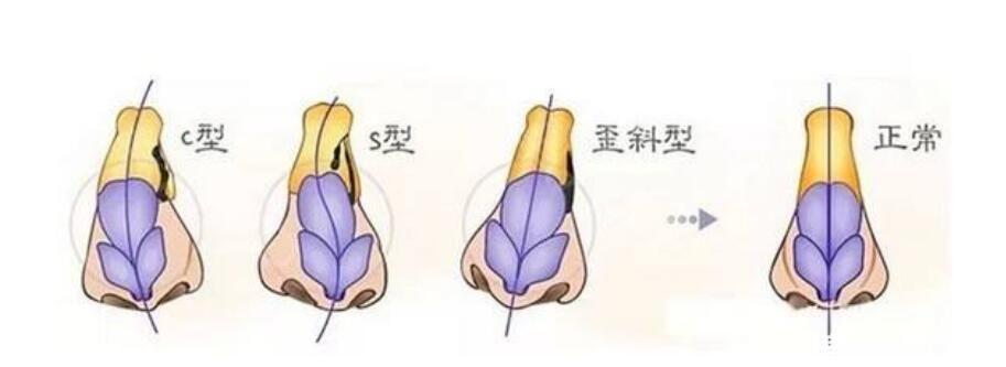 隆鼻假体下滑表现现象
