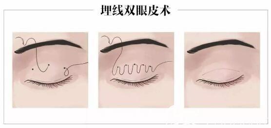 埋线双眼皮手术步骤