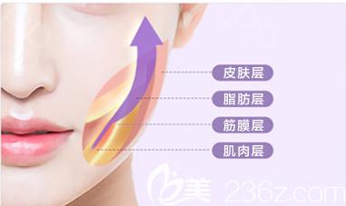 面部拉皮手术效果