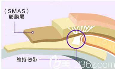面部拉皮手术原理图