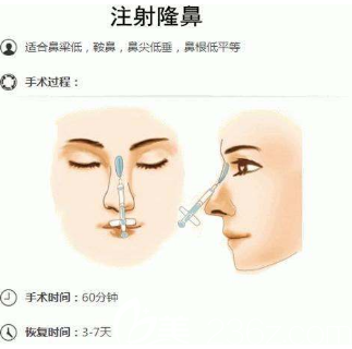 注射隆鼻示意图
