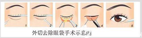 外切法去眼袋手术过程示意图