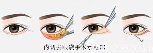 内切去眼袋手术步骤简易图