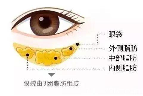 形成眼袋的3团脂肪分布位置