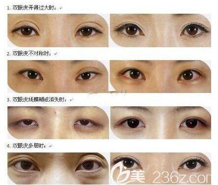 双眼皮失败原因和效果