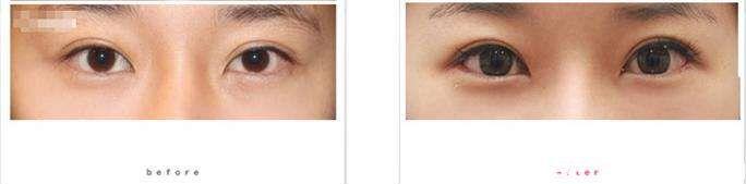 双眼皮修复效果对比图