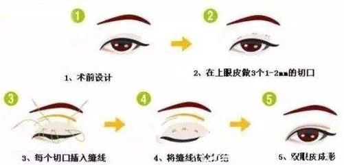 全切双眼皮手术示意图