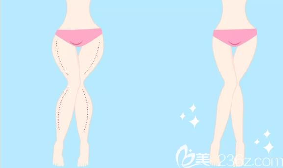 大腿吸脂减肥