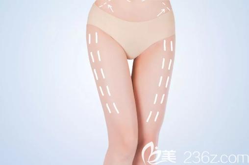 大腿吸脂后要换不同效果的塑身衣吗