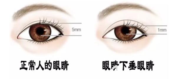 上睑下垂和正常人的眼睛对比示意图