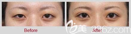 不对称双眼皮修复前后