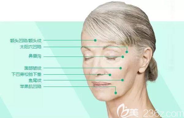 脸部凹陷填充部位示意图