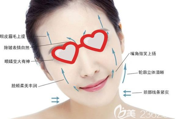 面部线雕改善的部位和效果