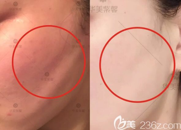 线雕后脸颊凹陷修复效果怎么样