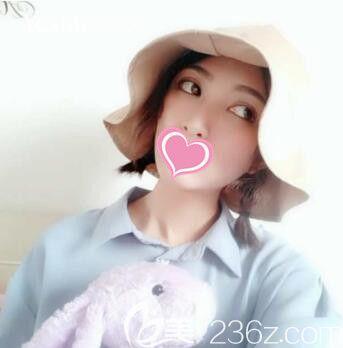 我在上海找彭才学做桃花媚眼综合+宫廷复合隆鼻,快半年的时间状态保持的很自然