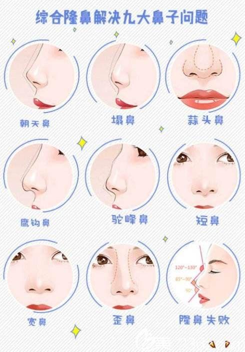 鼻综合可以解决的鼻部类型