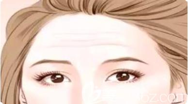 额部有皱纹展示图